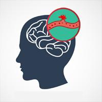 meningeal-hemorrhage