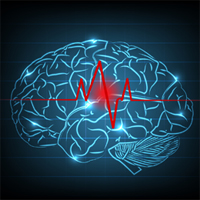 hemorragie-cerveau