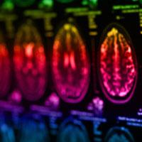 scanner-cerebral