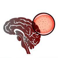 EMI-meningite